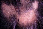 Alopecia Areata - Bald Patches Treatment