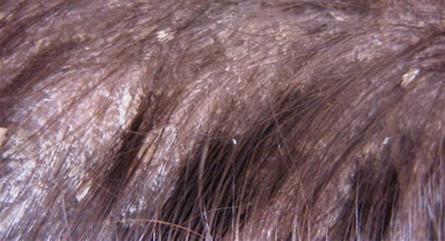 Itchy Flaky Scalp Treatments - Hairology.co.uk - 'The Root to Healthier Hair'.